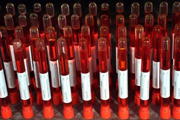 Rita Soccio, Vi amo da morire, 2010 – work in progress installazione (particolare), fialette, liquido rosso. Courtesy l'artista