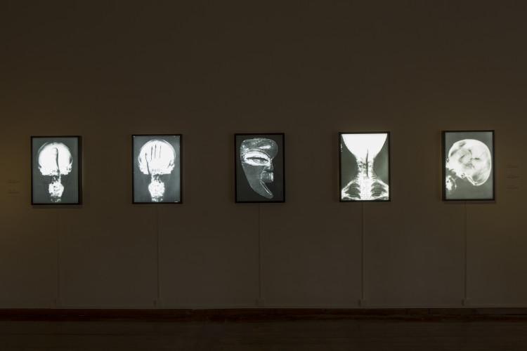 Craniologie, c. 1973 Radiografie con sovrapposizione fotografica e scritte a mano, cm 50 x 70 Foto: © Marco Caselli Nirmal